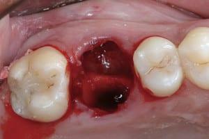 Zub se přesune odsud...