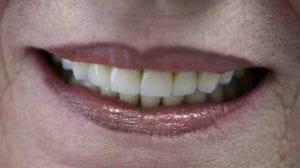Zubní korunka